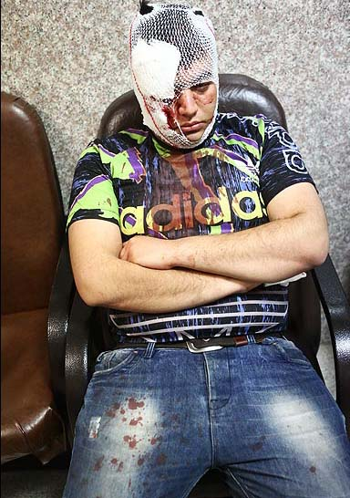 عکس های چهار شنبه سوری   چهارشنبه سوری در تهران پارسال   تصاویری دلخراش از چهارشنبه سوری پارسال   چهاشبه سوری   عکس   عکسهای آتیش بازی در چهارشنبه سوری   عکسهای ترسناک از چهارشنهبه سوری   چهارشنبه آخر سال